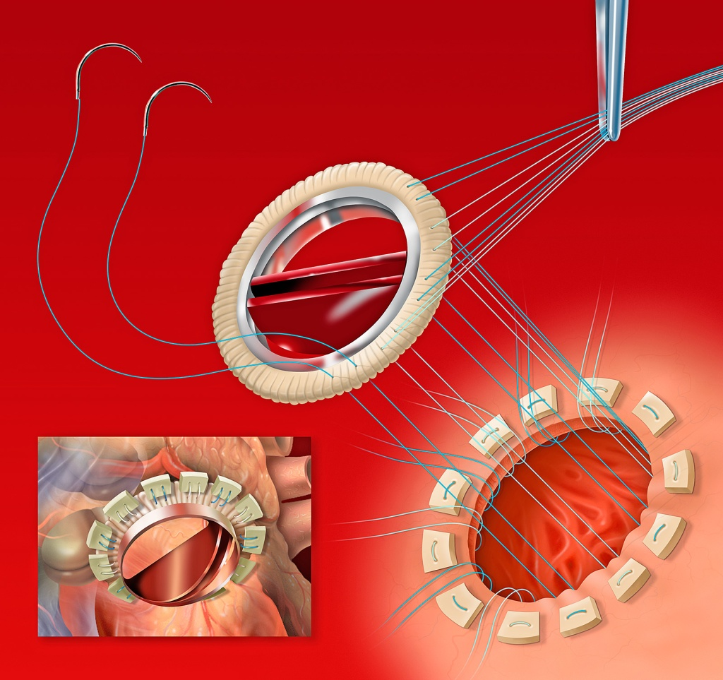 Installing an artificial mitral valve. Photoshop illustration.