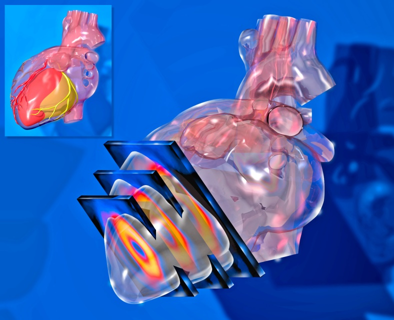 SPECT nuclear imaging of the left ventricle. A composite of SPECT images and 3D modeling of the heart, refined in Photoshop. From about 1995.